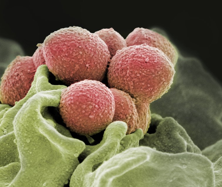 Scanning electron microscope image of Staphylococcus pyogenes bacteria (pink). Credit: NIH National Institute of Allergy and Infectious Diseases