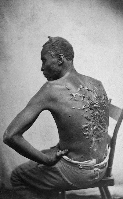 Scourged back by McPherson Oliver 1863 retouched
